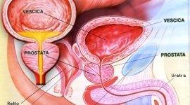 Esperto in problemi di urologia a Genova